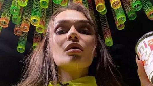 «Яваду»: Алена Водонаева показала распухшее лицо после удаления зубов